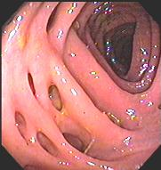 diverticulosis diseases
