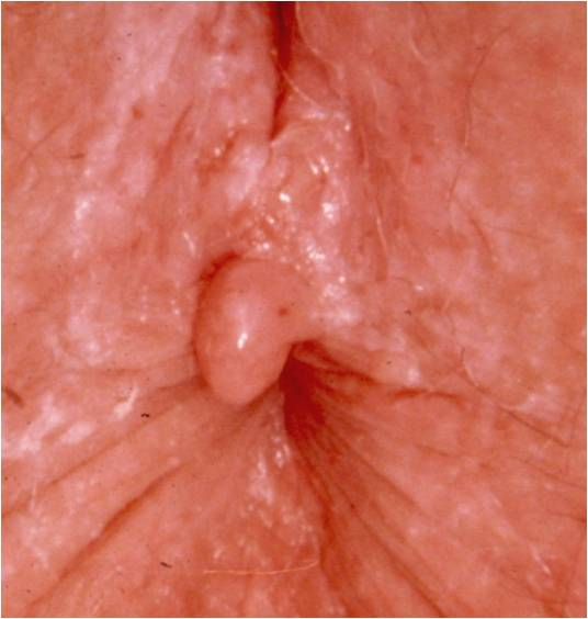 Anal Fissure is a Colorectal Diseases